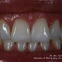 Smile Restoration Dental Lab logo